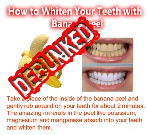 banana-teeth-whitening